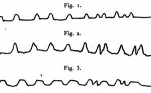 """Diagram of 3 wavy lines labeled """"figure 1"""" through """"figure 3"""" intended to depict different measurements of syllable durations made by """"linking the kymograph to the lips."""""""